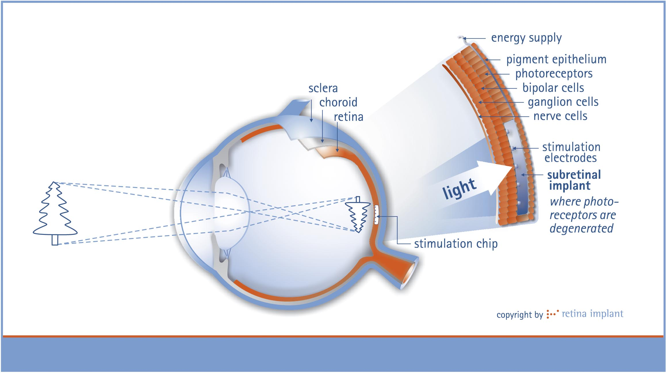 Retinal Implant Diagram
